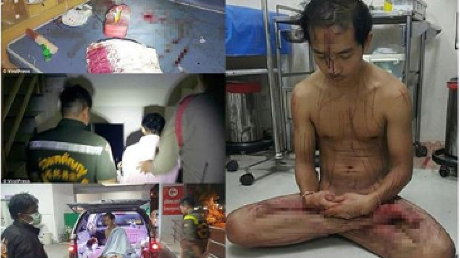 Ug here we go again, man cuts off own penis during fight with girlfriend in taiwan